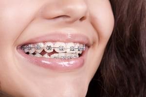 braces-tijuana